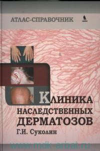 Клиника наследственных дерматозов : атлас-справочник