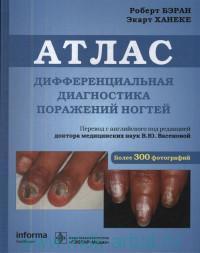 Дифференциальная диагностика поражений ногтей : атлас