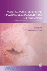 Кольпоскопия и лечение предраковых заболеваний шейки матки