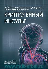 Криптогенный инсульт : руководство